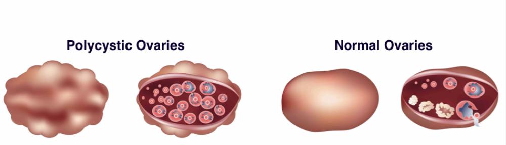 tecken på utebliven ägglossning