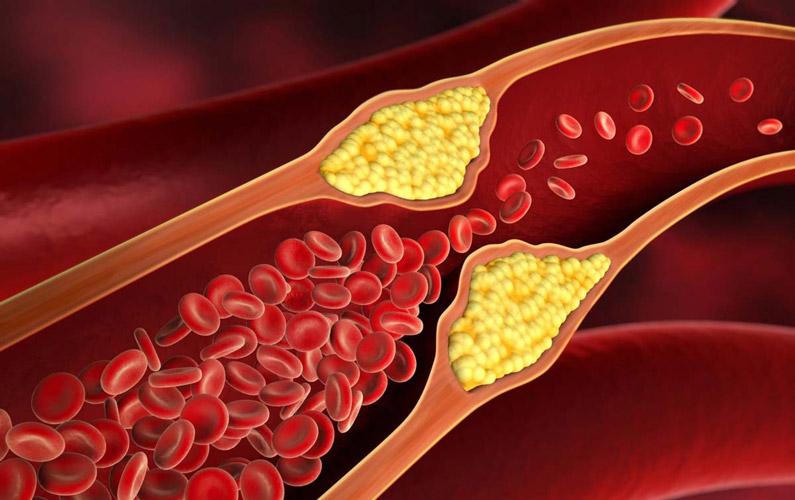 Hacka ditt kolesterolvärde